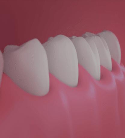 Treatment - Beverley House Dental